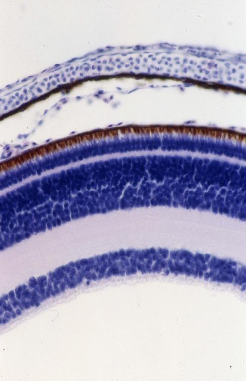 Neural - lizard eye