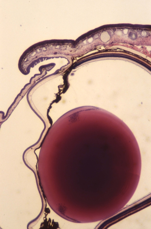 Neural - frog eye 1