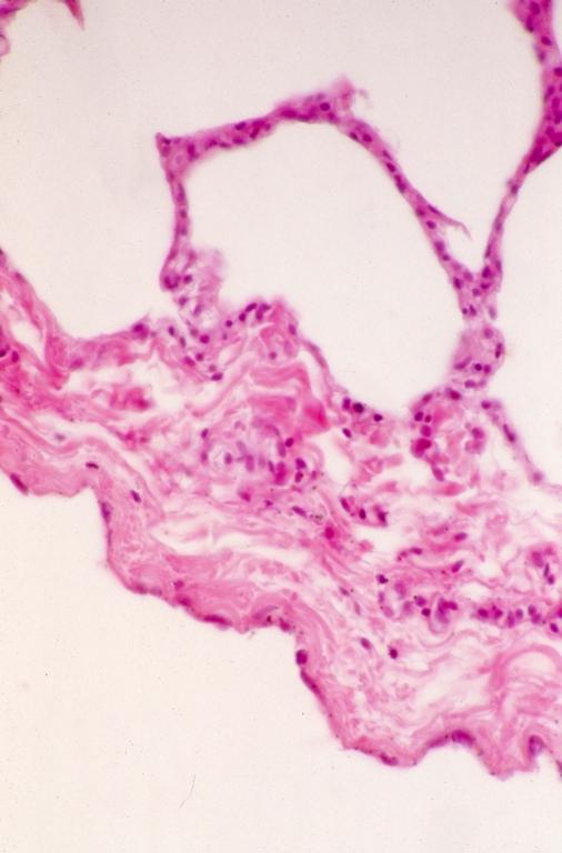 Respiratory - lung 5