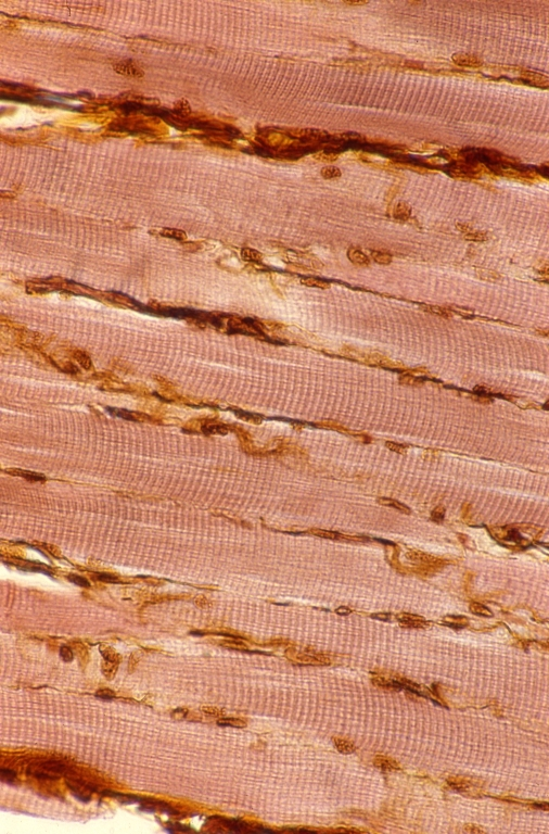 Muscles - tongue muscle 1