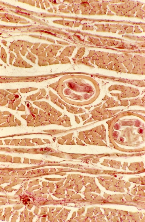 Muscles - tongue muscle 2