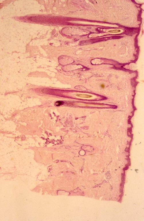Skin - scalp 1