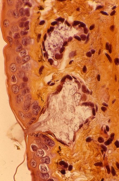 Skin - amphibian skin 2