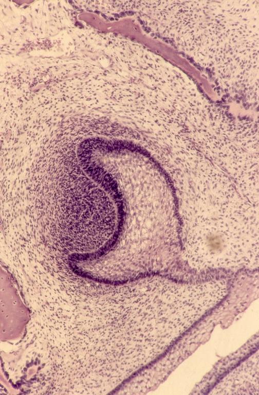 Embryo - pig embryo 6